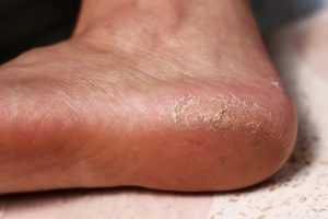 Diabetic Foot Care In Pinellas Park Fl Precision Foot And Ankle P A